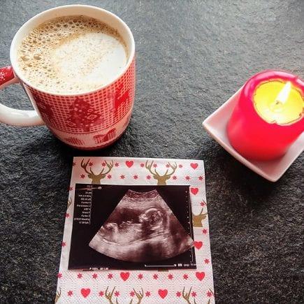 Schwangerschaftsupdate, 19. Schwangerschaftswoche